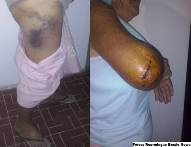 Fotos dos hematomas e cortes sofridos pela idosa na agressão